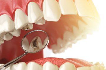 מחירון טיפולי שיניים